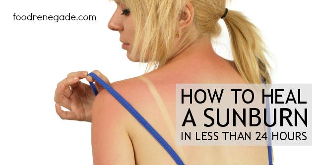 How to Heal a Sunburn - Tallow Balm